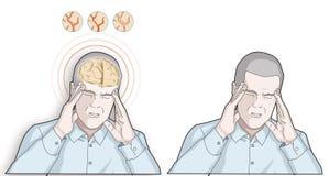 L'uomo ottiene l'emicrania - concetto di emicrania e di sanità - illustrazione Immagini Stock