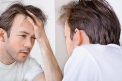 L'uomo sonnolento soffre da postumi di una sbornia Immagini Stock Libere da Diritti