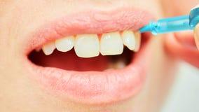 L'uso corretto di uno spazzolino da denti per orale perfetto Fotografie Stock Libere da Diritti