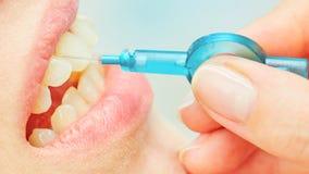 L'uso corretto di uno spazzolino da denti per orale perfetto Fotografia Stock Libera da Diritti