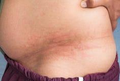 La alergia causa la inflamación como rojez en la cintura Fotografía de archivo