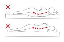 La alineación incorrecta de la espina dorsal al dormir stock de ilustración