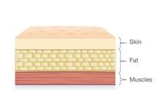 La anatomía de la capa de la piel, la célula gorda y el músculo acodan en estilo del vector libre illustration