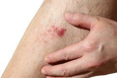 La blessure sur la jambe de l'homme Photo libre de droits