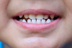 La bocca del bambino con un dente di latte Fotografia Stock Libera da Diritti
