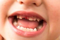 La bocca di un ragazzo senza un dente immagine stock