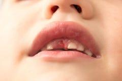 La bocca di un ragazzo senza un dente fotografia stock libera da diritti
