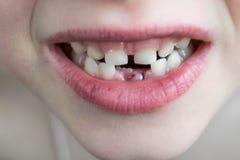 La bouche ouverte de l'enfant Deux rangées des dents Dans le RO du fond Photographie stock libre de droits
