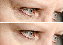 La cara arruga retiro Imagen de archivo