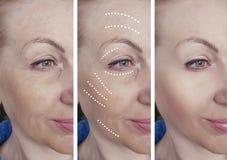 La cara de la mujer arruga antes despu?s de los procedimientos de hidrataci?n de hidrataci?n de la correcci?n del biorevitalizati imágenes de archivo libres de regalías