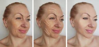 La cara de la mujer arruga antes despu?s de los procedimientos de hidrataci?n de hidrataci?n de la correcci?n del biorevitalizati fotografía de archivo libre de regalías
