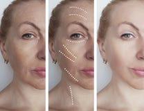 La cara de la mujer arruga antes despu?s de los procedimientos de hidrataci?n de la correcci?n del biorevitalization del tratamie foto de archivo libre de regalías