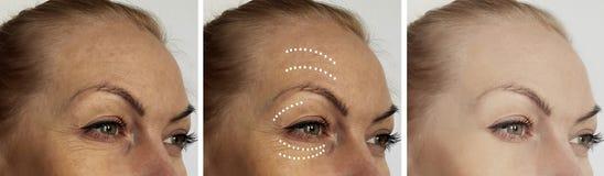La cara de la mujer arruga antes despu?s de los procedimientos de hidrataci?n de la correcci?n del biorevitalization del tratamie imagen de archivo