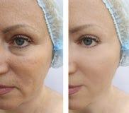 La cara de la mujer mayor arruga terapia de elevación del tratamiento de la regeneración de la dermatología antes y después de pr fotos de archivo libres de regalías