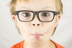 La cara del síndrome de los plumones Imagen de archivo