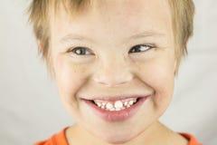 La cara del síndrome de los plumones Foto de archivo libre de regalías