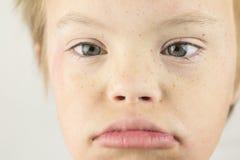 La cara del síndrome de los plumones Fotografía de archivo libre de regalías