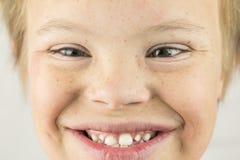 La cara del síndrome de los plumones Fotos de archivo libres de regalías