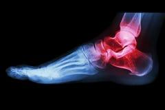 La caviglia dell'essere umano dei raggi x con l'artrite Immagini Stock