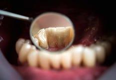 La corona della resina per il trattamento temporaneo, quello è utilizzata nei casi quando il paziente deve allontanarsi con i den Fotografia Stock