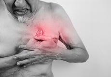 La crise cardiaque possible de douleur aiguë, homme supérieur est saisissant lui che Photographie stock