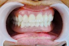La dentadura Fotos de archivo