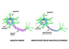 La destruction de la gaine my?linique sur l'axone Myelin endommag? Neurone affect? par scl?rose en plaques Multiple du monde illustration libre de droits