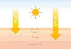 La diferencia de la radiación 2 mecanografía adentro luz del sol con la piel ilustración del vector