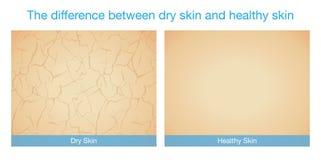 La diferencia entre la piel seca y la piel sana libre illustration