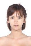 La donna asiatica prima compone nessun ritocchi, fronte fresco con acne, SK Fotografia Stock
