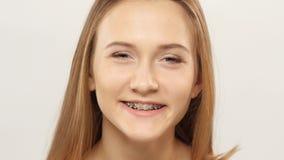 La donna con i sostegni sui denti guarda e risate bianco closeup archivi video