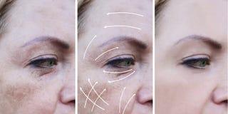 La donna corruga la correzione prima e dopo le procedure, freccia, la pigmentazione fotografie stock libere da diritti