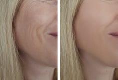 La donna corruga il fronte prima e dopo la differenza cosmetica di procedure di rimozione matura Fotografia Stock
