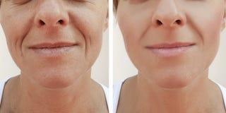 La donna corruga il fronte prima e dopo le procedure del cosmetico del trattamento immagini stock libere da diritti