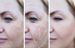 La donna corruga il trattamento prima e dopo le procedure, freccia, la pigmentazione di correzione fotografie stock libere da diritti