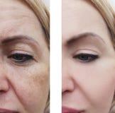 La donna facciale corruga la rigenerazione di rimozione prima e dopo le procedure di correzione fotografia stock libera da diritti