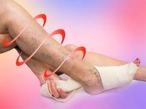 La donna senior che corregge una fasciatura elastica che ha legato la sua gamba Fotografie Stock Libere da Diritti
