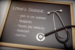 La enfermedad de Crohn puede tener diarrea, dolores de cabeza, ardor de estómago, náusea y vomitar de estos síntomas, dolor en el imagenes de archivo