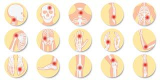 La enfermedad de las juntas y del icono de los huesos fijó en el fondo blanco ilustración del vector