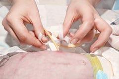 La enfermera está fijando el tubo del gastrostomy con el remiendo médico del bebé recién nacido en la Unidad de Cuidados Intensiv Fotografía de archivo
