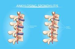 La espina dorsal articula el vector Infographic de los síntomas de la artritis stock de ilustración