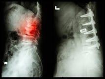 La espondilosis (imagen izquierda), paciente fue actuada y fijo interno (Imagen correcta) en viejo hombre Foto de archivo libre de regalías