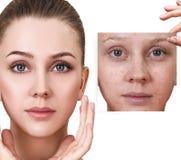 La femme montre la photo avec la mauvaise peau avant traitement Photographie stock libre de droits