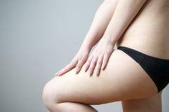 La femme vérifie l'élasticité de la peau sur les jambes photo stock