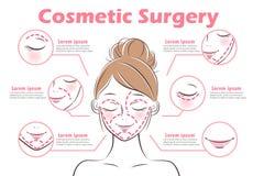 La fille avec la chirurgie esthétique illustration libre de droits