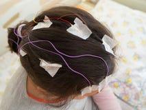 La fille avec des électrodes d'EEG a attaché à sa tête pour l'examen médical Photos libres de droits