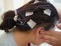 La fille avec des électrodes d'EEG a attaché à sa tête pour l'examen médical Image stock