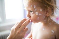 La fille avec la varicelle, crème antiseptique s'est appliquée aux ras Photographie stock libre de droits