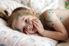 La fille souffre la varicelle Photographie stock libre de droits