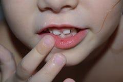 La fille a une blessure cassée sur les lèvres L'enfant est tombé et a cassé sa lèvre photographie stock